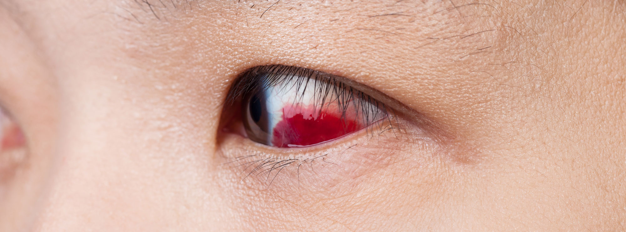 close up of woman's eye with retinal tear